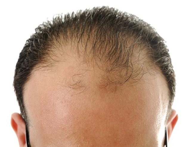 Haarwerk aanmeten bij mannen en vrouwen met beginnende of gevordere kaalheid